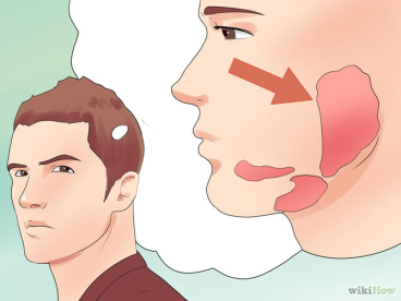 mumpssymptoms