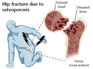 fractura femur osteoporosis fosamax